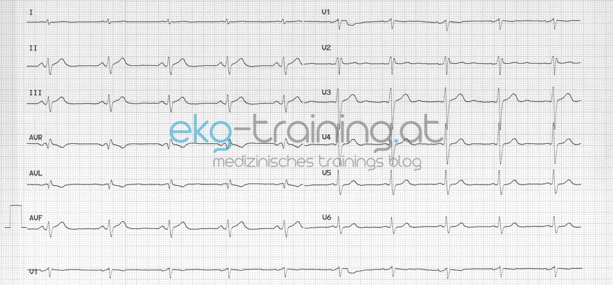 Notarztwagen Einschnurende Schmerzen Ekg Training