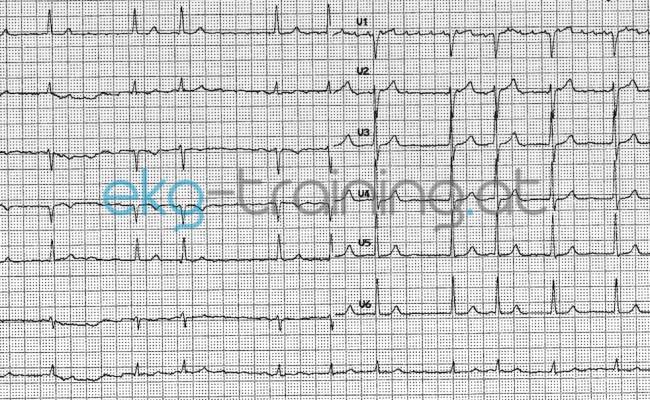 EKG Quiz – Vergleichsbefunde