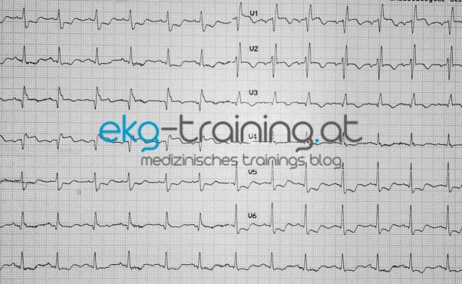 EKG Quiz # 8