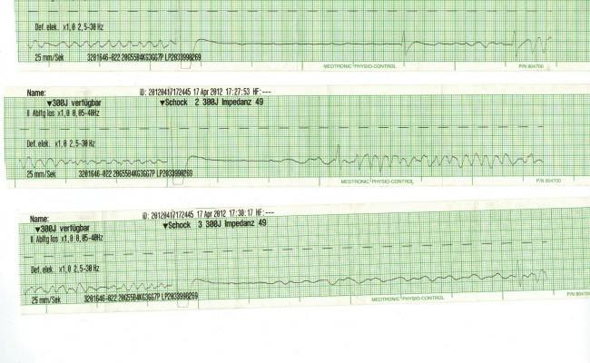 Dokumentation einer Defibrillation bei VF / VT